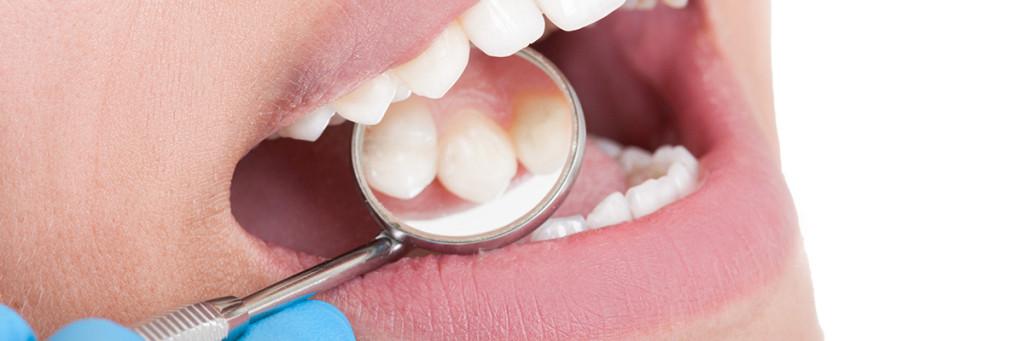 En tandhygienist har koll