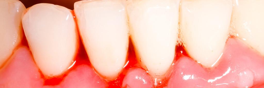 Tandköttinflammation leder ofta till blödande tandkött