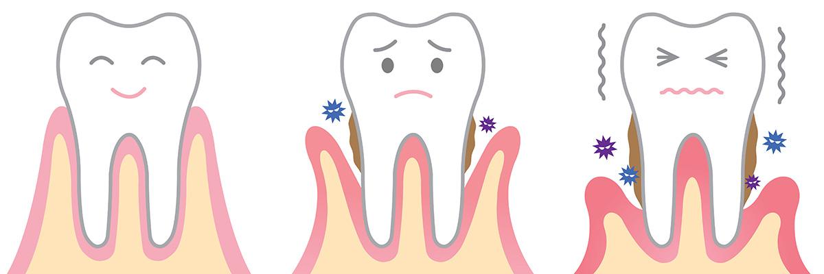 vad är tandlossning