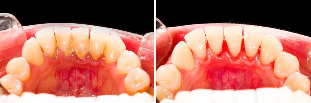 Tandsten kan orsaka mycket problem